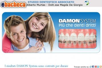 Anteprima Apparecchi dentali Damon